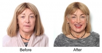 Kellie Maloney Before and After Treatment