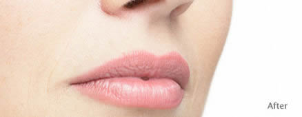 Lip perfection after